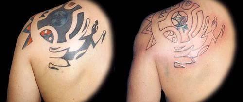 La remoción de tatuajes es una alternativa