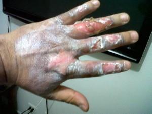 Las manos del padre de Jacobo.