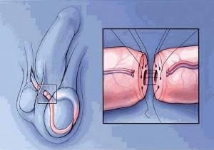 La vasectomía consiste en la unión de los segmentos de los conductos deferentes previamente seccionados o ligados.