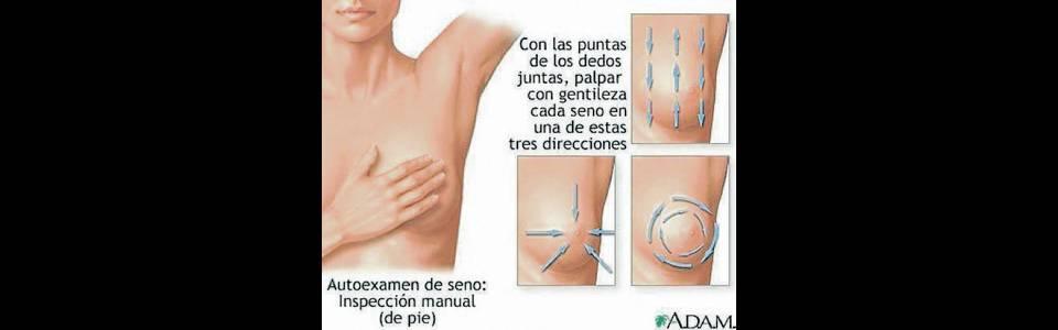 Todos, a prevenir el cáncer de seno